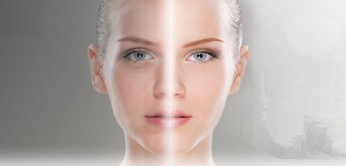 LightFusion Treatment